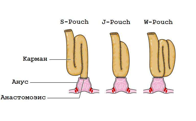 S-Pouch, J-Pouch и W-Pouch